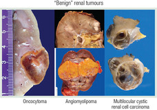 Tumours of the Kidney Figure 3