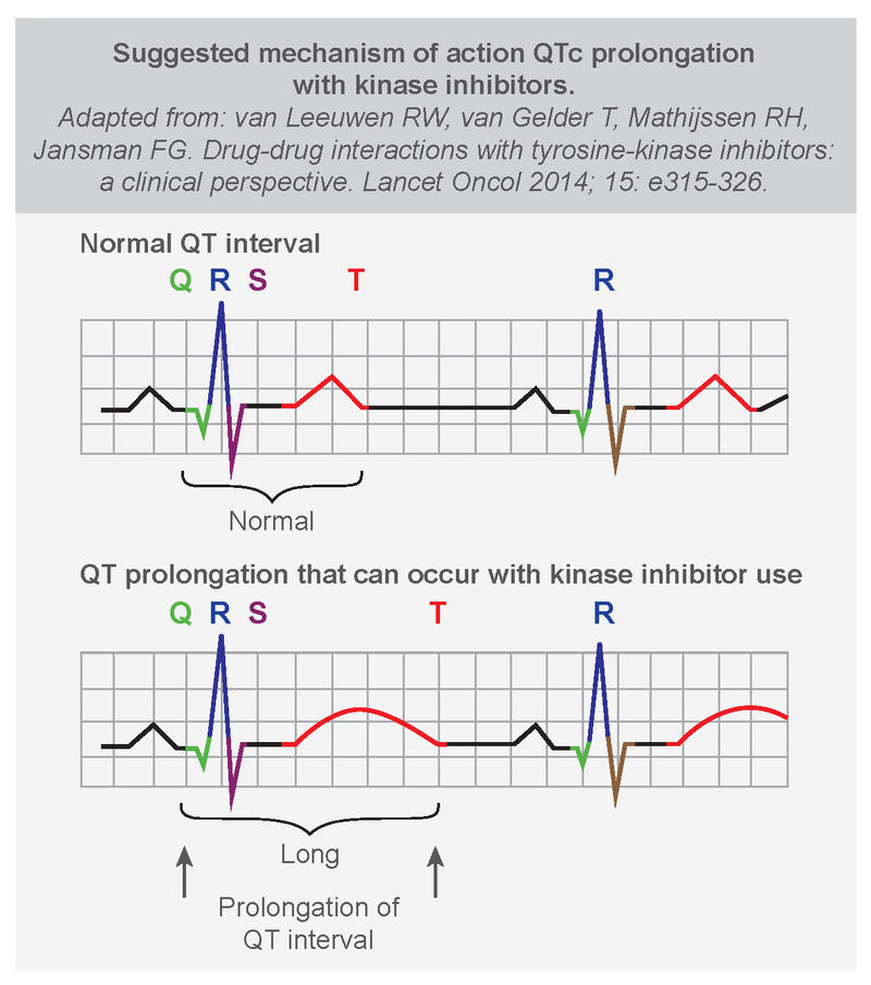 Qt interval prolongation and azithromycin and alcohol