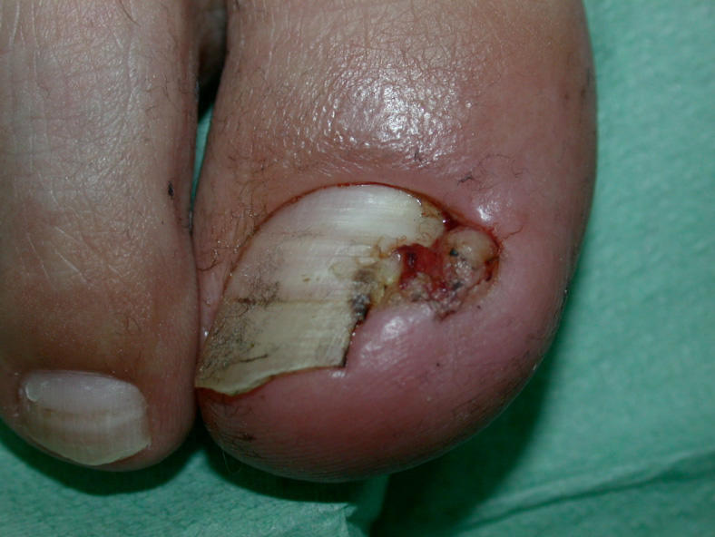 Adverse reactions of the nails paronychia secondary to
