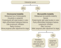 Genesis and Progression of GI Cancer a Genetic Disease Colorectal Cancer Figure 2