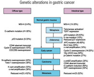 Genesis and Progression of GI Cancer a Genetic Disease Colorectal Cancer Figure 3