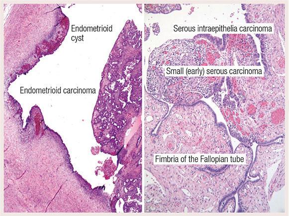 ovarian cancer histopathology oxiuros genero