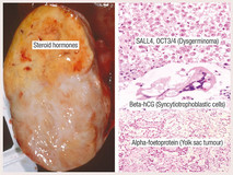 Non-Epithelial Ovarian Tumours Figure 2