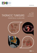 2014 ESMO Essentials for Clinicians Thoracic Tumours