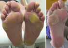 grade 3 (severe) hand-foot skin reaction