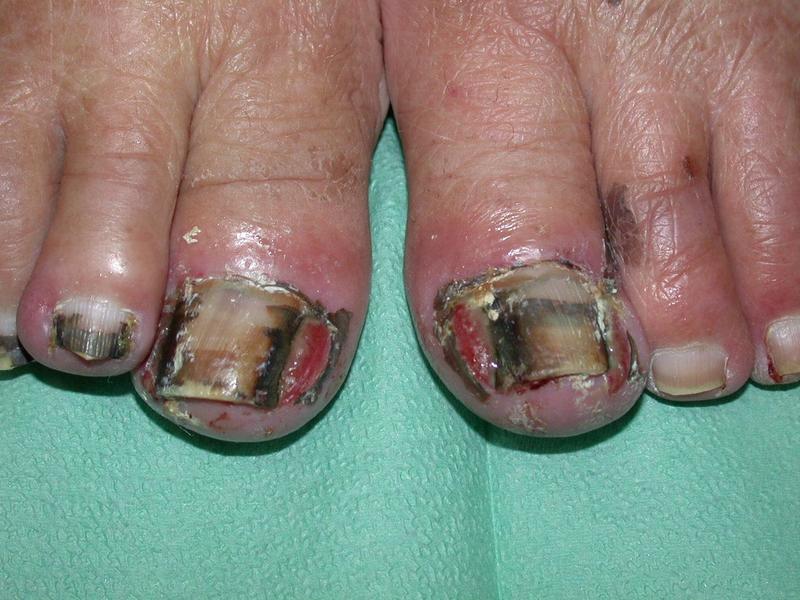 Nail Changes - Paronychia | Multikinase Inhibitor Skin