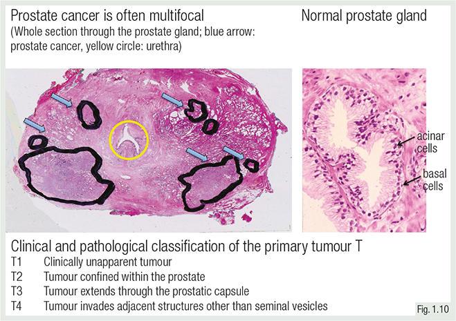A prosztata adenoma kezelésére vonatkozó nemzetközi protokoll