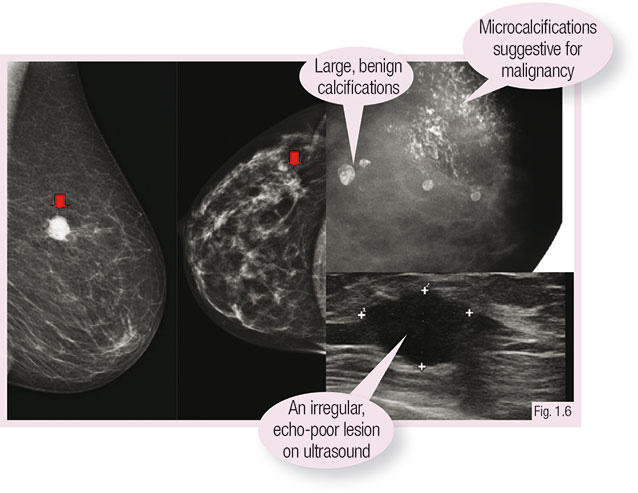 Clinical Examination And Imaging Oncologypro